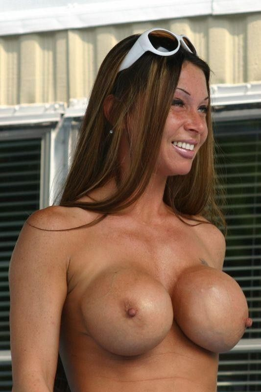 331871d1326999123-bad-boob-jobs-bad-boob-job2.jpg